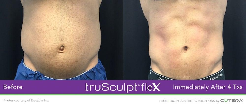 truSculpt-flex-ergebnisse-slide2