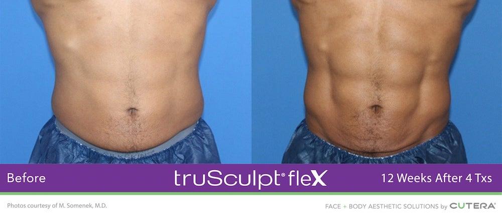 truSculpt-flex-ergebnisse-slide3