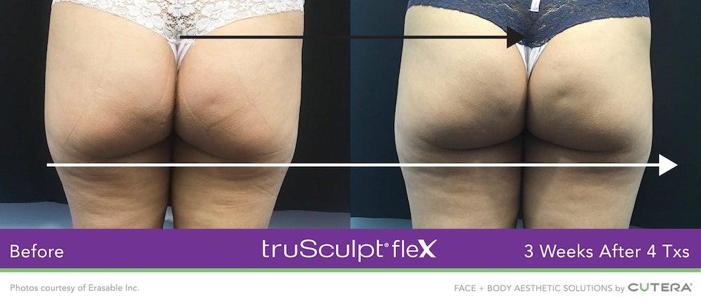 truSculpt-flex-ergebnisse-slide5